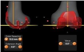 Leo-2 Robotic Surgery India