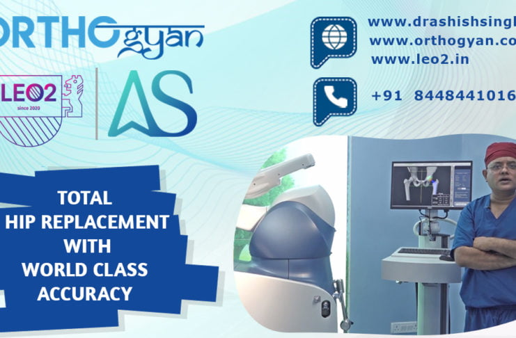 Robotic Hip Replacement Surgery with World Class Accuracy